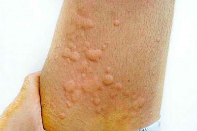 Gejala Gigitan Tungau Debu jenis alergi